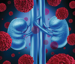 Study: Four Treatment Options for Renal Cell Carcinoma Prove More Effective Than Sunitinib Monotherapy
