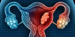 Monotherapy Demonstrates Promising Clinical Activity in Endometrial Cancer