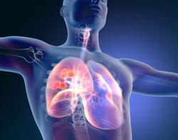 Assessing Future Treatment Options for Patients With Resectable Non-Small Cell Lung Cancer