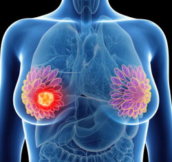 Men With Stage IV Breast Cancer Benefit from Trimodal Therapy