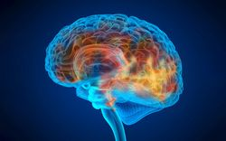 What To Know About Aducanumab and Slowing the Progression of Alzheimer Disease