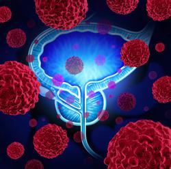 Assessing Germline, Somatic Genetic Testing for Prostate Cancer
