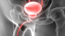 Pharmacy Clinical Pearl of the Day: Bladder Stones