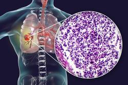 An Overview of the Phase 3 Trial Assessing Nivolumab Plus Platinum-doublet Chemotherapy for Resectable Non-Small Cell Lung Cancer