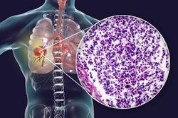 Study Finds Two New Methods for Small Cell Lung Cancer Therapy
