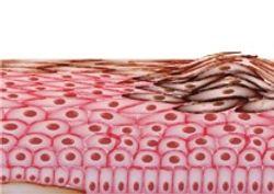 Druggable Targets for Melanoma: Skin Aquaporins