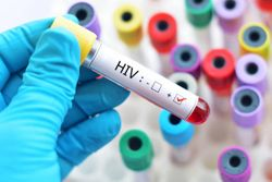 ViiV Healthcare Submits Supplemental NDA for Expanded Use of Cabotegravir, Rilpivirine as HIV Treatment Every 2 Months