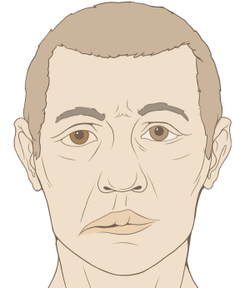 Pharmacy Clinical Pearl of the Day: Bell's Palsy