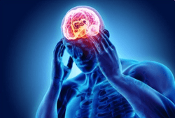 Pharmacy Clinical Pearl of the Day: Migraine Types