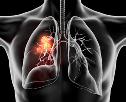 FDA Expands Indication of Lorlatinib for ALK-Positive Non–Small Cell Lung Cancer