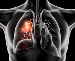 Pharmacist Medication Insights: Tepotinib for Non-Small Cell Lung Cancer
