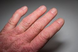 Data Show Durable, Complete Plaque Psoriasis Skin Clearance Through 5 Years With Guselkumab