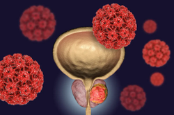 Genetic Biomarker Tests Can Help Identify Treatments for Men with Prostate Cancer