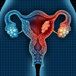 What Pharmacists Should Know About Endometrial Cancer