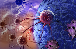 Preliminary Results Show Significant Increase in Overall Survival Among Breast Cancer Patients Receiving Leronlimab