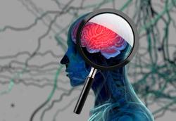 Dig Deeper Into Dementia: Clinical Trials Explore Genetic Component of FTD