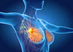 Phase 3 Trial of Pembrolizumab Met Primary Endpoint of Overall Survival In Certain Patients With Triple-Negative Breast Cancer