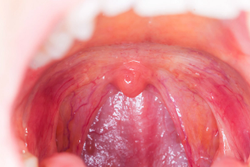 Pharmacy Clinical Pearl of the Day: Tonsillitis