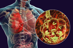 New Antibiotics Can Be Useful as Treatment for Community-Acquired Pneumonia