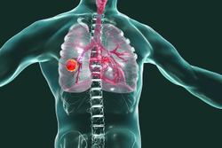 FDA Approves First Oral Treatment for EGFR Exon 20+ NSCLC