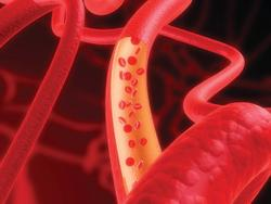 Lifestyle Changes Can Improve Inflammatory Burden