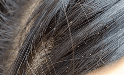 Pharmacy Clinical Pearl of the Day: Head Lice