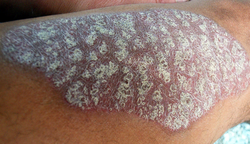 Pharmacist Medication Insights: Risankizumab-rzaa for Moderate-to-Severe Plaque Psoriasis