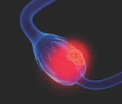 FDA Grants Fast Track Designation to Nemvaleukin as Treatment for Ovarian Cancer
