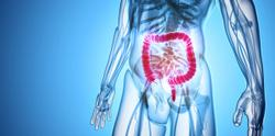 Upadacitinib Demonstrates Promise for Treating Patients With Ulcerative Colitis