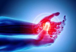 Pharmacy Quiz: Test Your Knowledge on Rheumatoid Arthritis Treatments