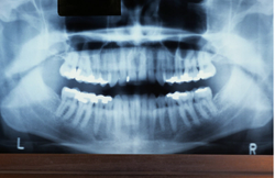 Pharmacy Clinical Pearl of the Day: Bruxism