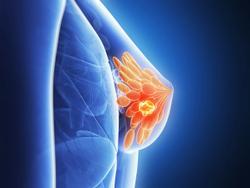 Data Demonstrate Survival Benefit of Sacituzumab Govitecan In Metastatic Triple-Negative Breast Cancer Regardless of HR/HER2 Status