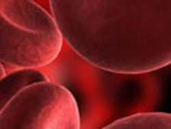 Sickle Cell Disease In Three Acts