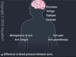 Image IQ: Older Patient with Hypertension Experiencing Numbness in Left Arm
