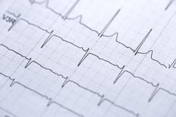 Timing of Atrial Fibrillation Can Help Predict Stroke Risk