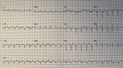 Case Report: Lethargy?