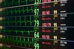 Intravenous Alcohol Has Immediate Effect on Cardiac Electrophysiology, Trial Finds