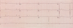 Case Report: Junctional Bradycardia in a 42-Year-Old Male