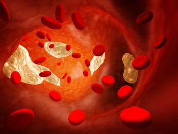 Phase 2 Trial Suggests Evinacumab Cuts LDL-C by 50% in Refractory Hypercholesterolemia