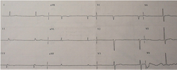 Cardiology Case Report: Syncope and Bradycardia
