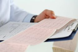 Study Warns of Increased Incidence, Risk of Death with Arrhythmias in Cannabis Users