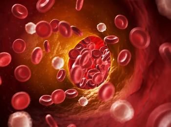 AHA Registry Provides Comprehensive Review of Ischemic Stroke in COVID-19 Patients