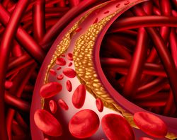Multiple Risk Factors Play Role in Odds of Developing Peripheral Artery Disease in Patients with Type 2 Diabetes