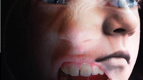 Update on Treatment of Pediatric Bipolar Disorder