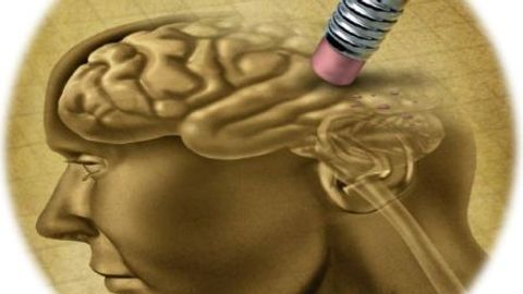 Frontotemporal Dementia: A Brain Disease That Challenges Definitions of Mental Illness