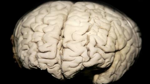 Sex and Gender Differences in Alzheimer Disease Dementia