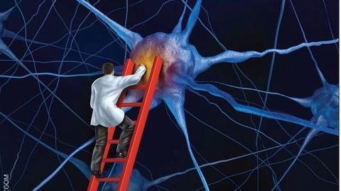 Implications of Impulse Control Disorder in Parkinson Disease