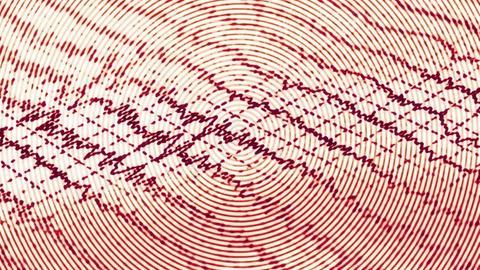 Epilepsy and Seizures: Neuropsychiatric Implications