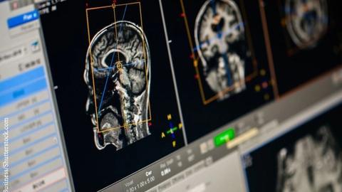 "New Developments in EEG Brain Scans Could Help Spot Mental Disorders ""Early"""