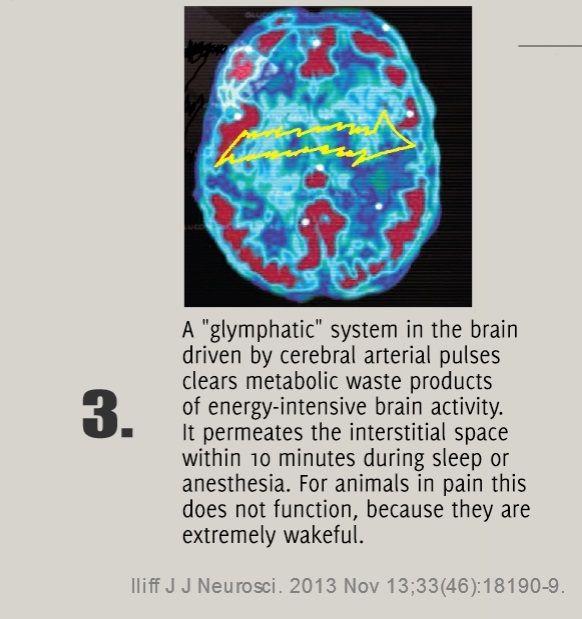 sleep pain